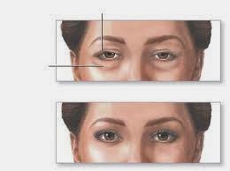 بالصور اسباب تورم الوجه عند الاستيقاظ من النوم , اعراض انتفاخ الوش 240 1