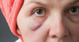 بالصور اسباب تورم الوجه عند الاستيقاظ من النوم , اعراض انتفاخ الوش 240 2 310x165