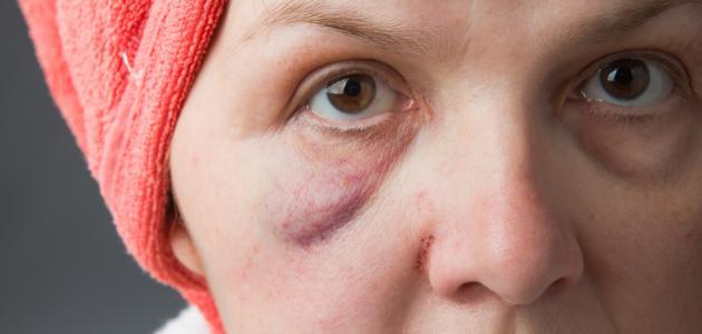 بالصور اسباب تورم الوجه عند الاستيقاظ من النوم , اعراض انتفاخ الوش 240