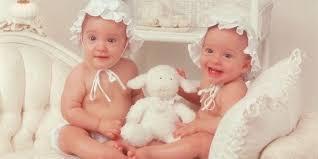 بالصور انجاب توام في المنام , ولادة طفلين توام فى المنام 451 2