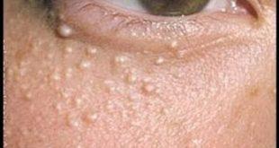 حبوب حول العين , اسباب ظهور البثور وحبوب حول منطقة العين