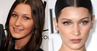 عملية نحت الوجه قبل وبعد , فوائد عمليات نحت الوجه وصور لها قبل وبعد