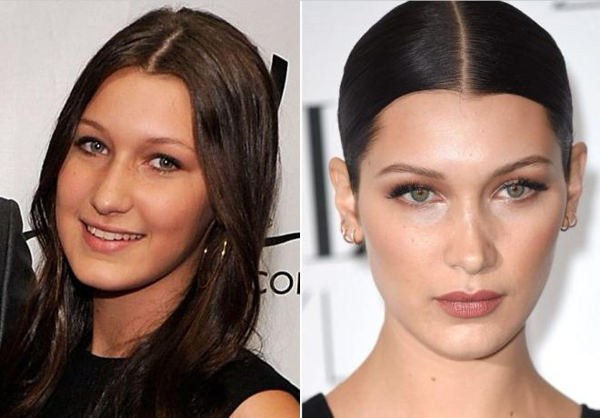 صورة عملية نحت الوجه قبل وبعد , فوائد عمليات نحت الوجه وصور لها قبل وبعد